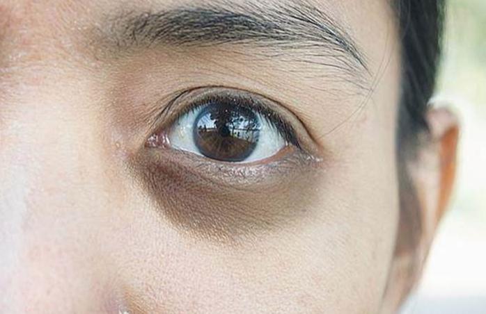 黑眼圈的種類